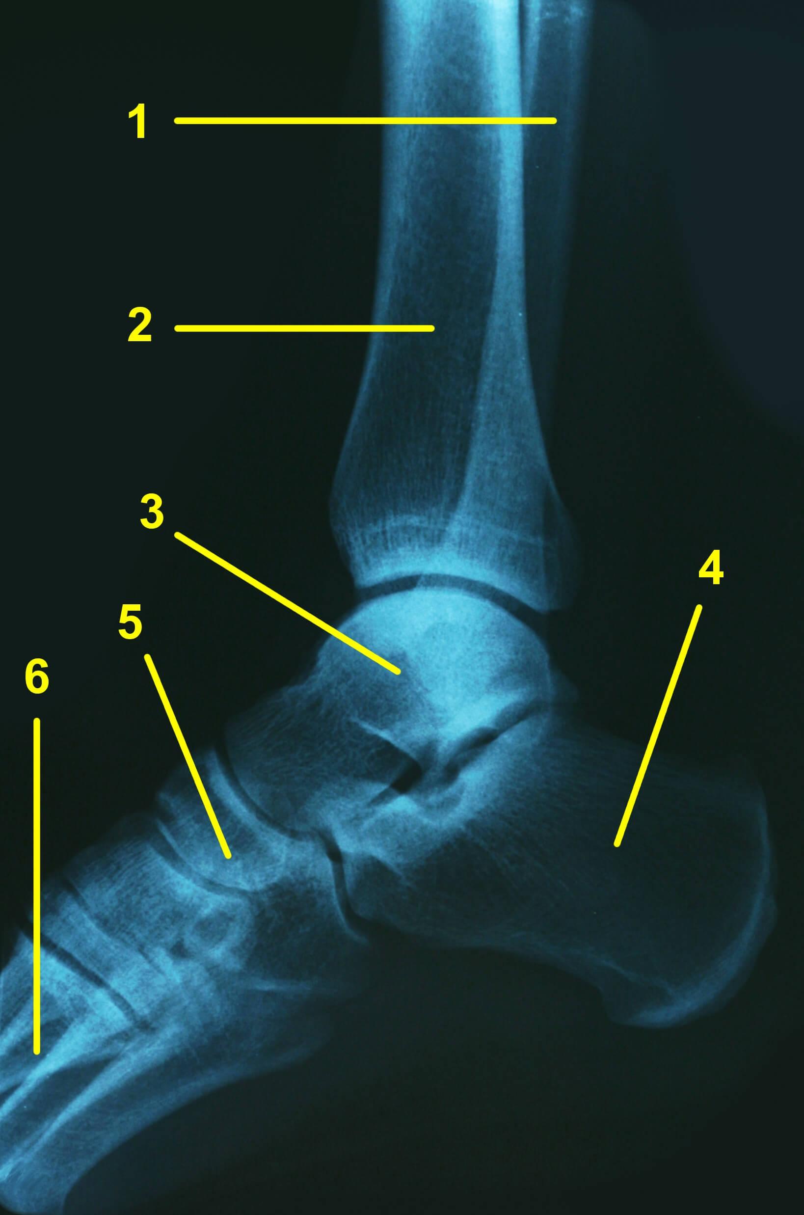 Mangelnde Fußgelenk Mobilität im Sprunggelenk als Grund für den Buttwink